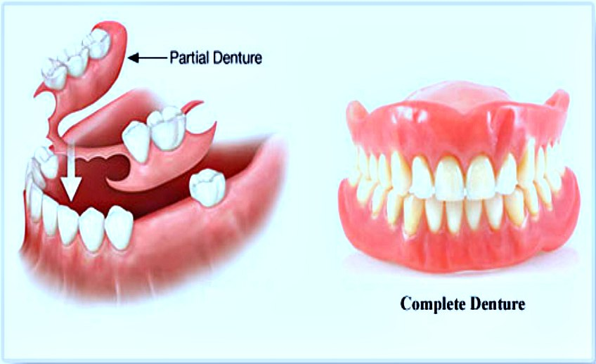 What Are The Things You Need To Know About Dentures?